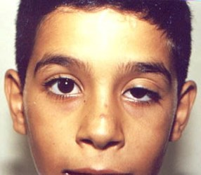 Left eye drooping (ptosis) seen in a patient (source)