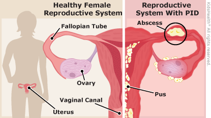 PID can comprise the integrity of the female reproductive system (source)