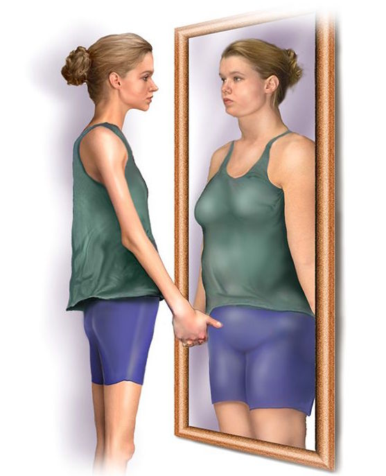 anorexia from excessive dieting Anorexia nervosa is an eating disorder characterized by the inability to maintain a minimally normal weight, a devastating fear of weight gain, relentless dietary habits that prevent weight gain, and a disturbance in the way in which body weight and shape are perceived.