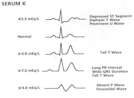 Electrocardiogram Guide Ekgecg Stepwards