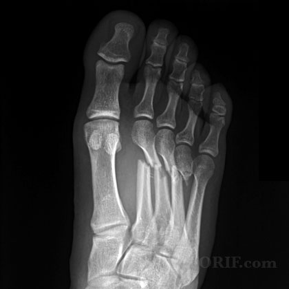 X-ray of metatarsal fractures (source)