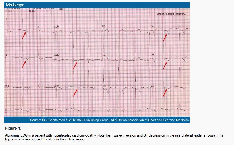 HCOM EKG