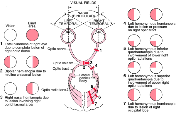 Optic nerve pathway leisions and their clinical findings (source)