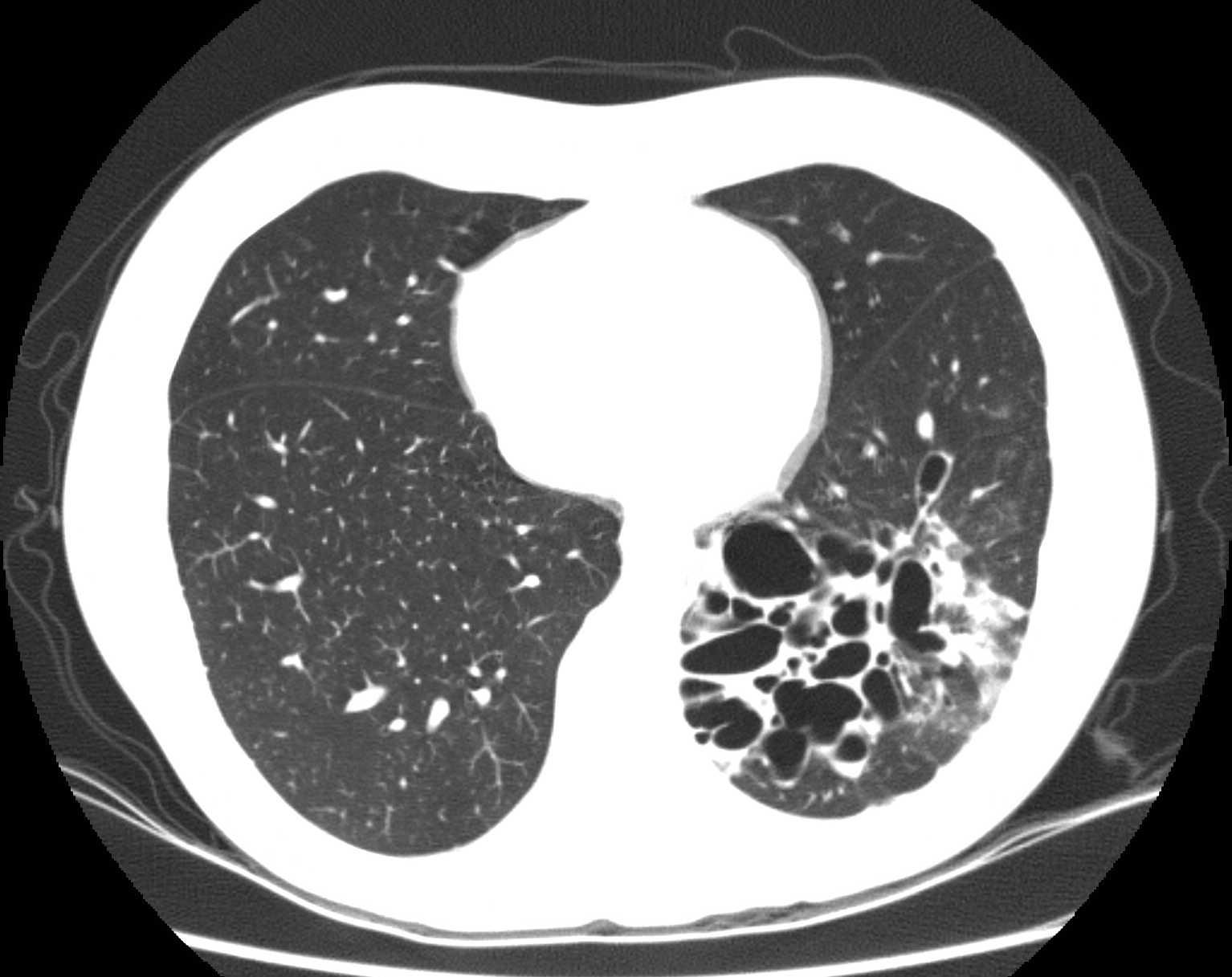 CT scan of bronchiectasis showing airway dilation (source)