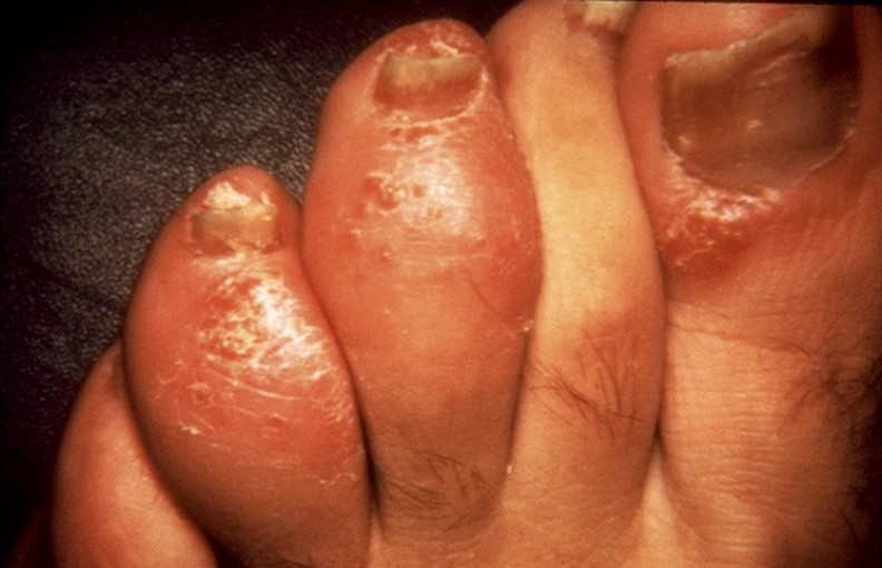Dactylitis in the toes (source)