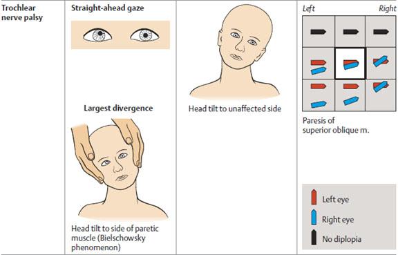 Clinical presentation of trochlear nerve palsy (source)