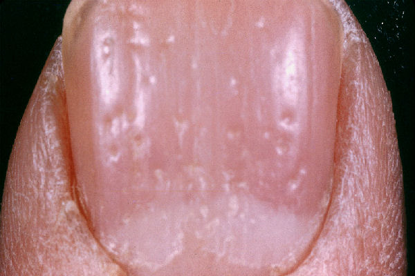Pitting nail that can be found in psoriasis (source)