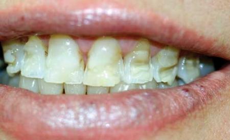 Bulimia patient with enamel erosion (source)