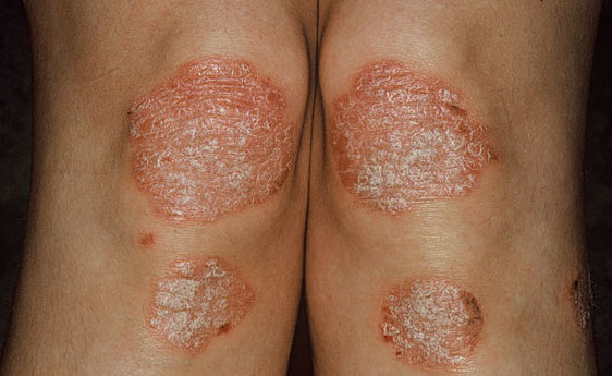 Psoriasis scales found on a patient's knees (source)