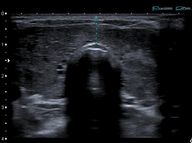 Diffusely large thyroid in Graves disease (seen by ultrasound, source)