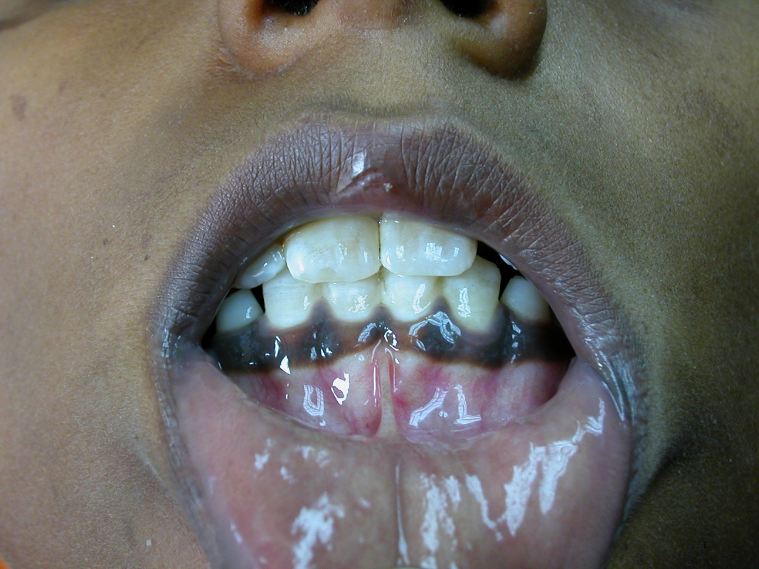 Hyperpigmentation of the gums seen in a patient with Addison disease (source)