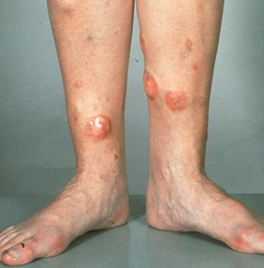 Tumerous leisions on the legs of a patient with DLBCL (source)