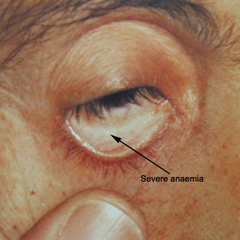 Conjunctival pallor seen in patient with severe anemia (source)