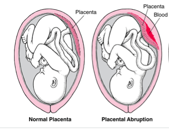 Comparison between a normal placenta, and placental abruption (source)