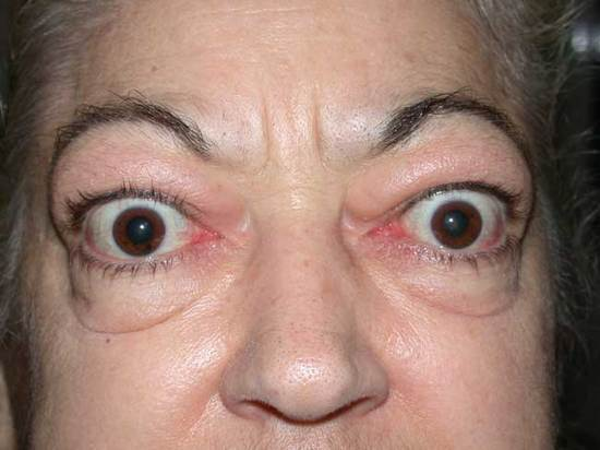 Protrusion of the eyes in a patient with Graves (source)