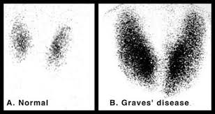 Diffuse increase in radio iodine uptake in patient with Graves compared to normal (source)