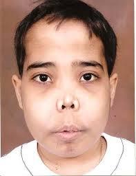 Chipmunk facies suggestive of bone marrow expansion of cheek bones (source)