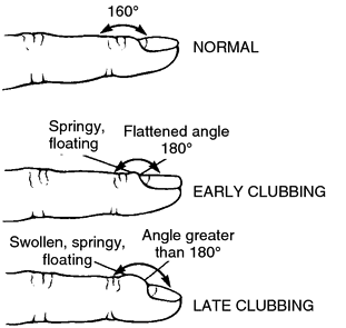 Progression of nail clubbing (source)