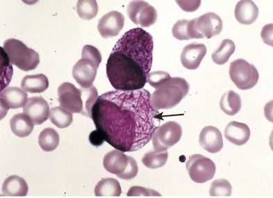 Auer rods seen in patient with AML (source)