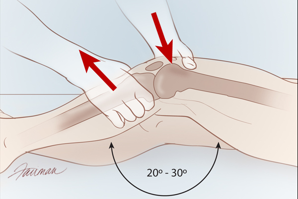 Lachman test procedure (source)