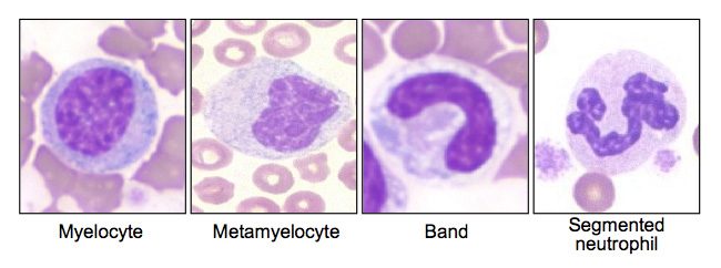 """Various cell types that mark a """"left shift"""" in a peripheral blood smear (source)"""