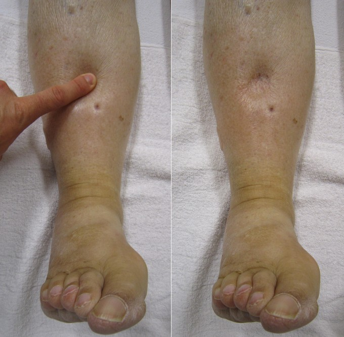 Clinical example of pitting edema (source)