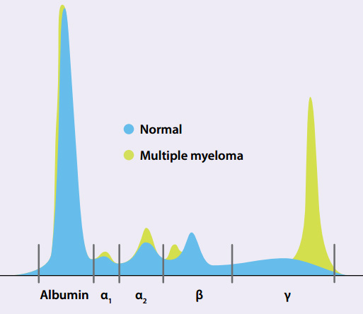 Results of serum electrophoresis in both a normal individual, and a patient with multiple myeloma. Immunoglobulins migrate towards the gamma portion during electrophoresis, so any increase in Ig expression can be observed here (source)
