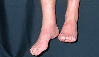 """Clinical presentation of """"foot drop"""" in a patient sitting on the side of an exam bed (source)"""
