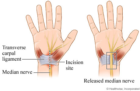 Carpal tunnel release surgery (source)