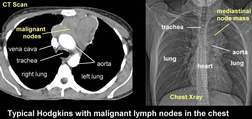 Схема abvd при лимфоме ходжкина