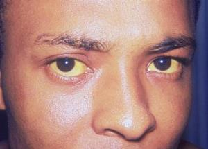 Jaundiced patient who presents with visibly yellow sclera of the eyes (source)