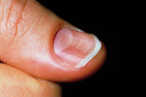 Spoon nail that can be seen in patients with iron deficiency (source)