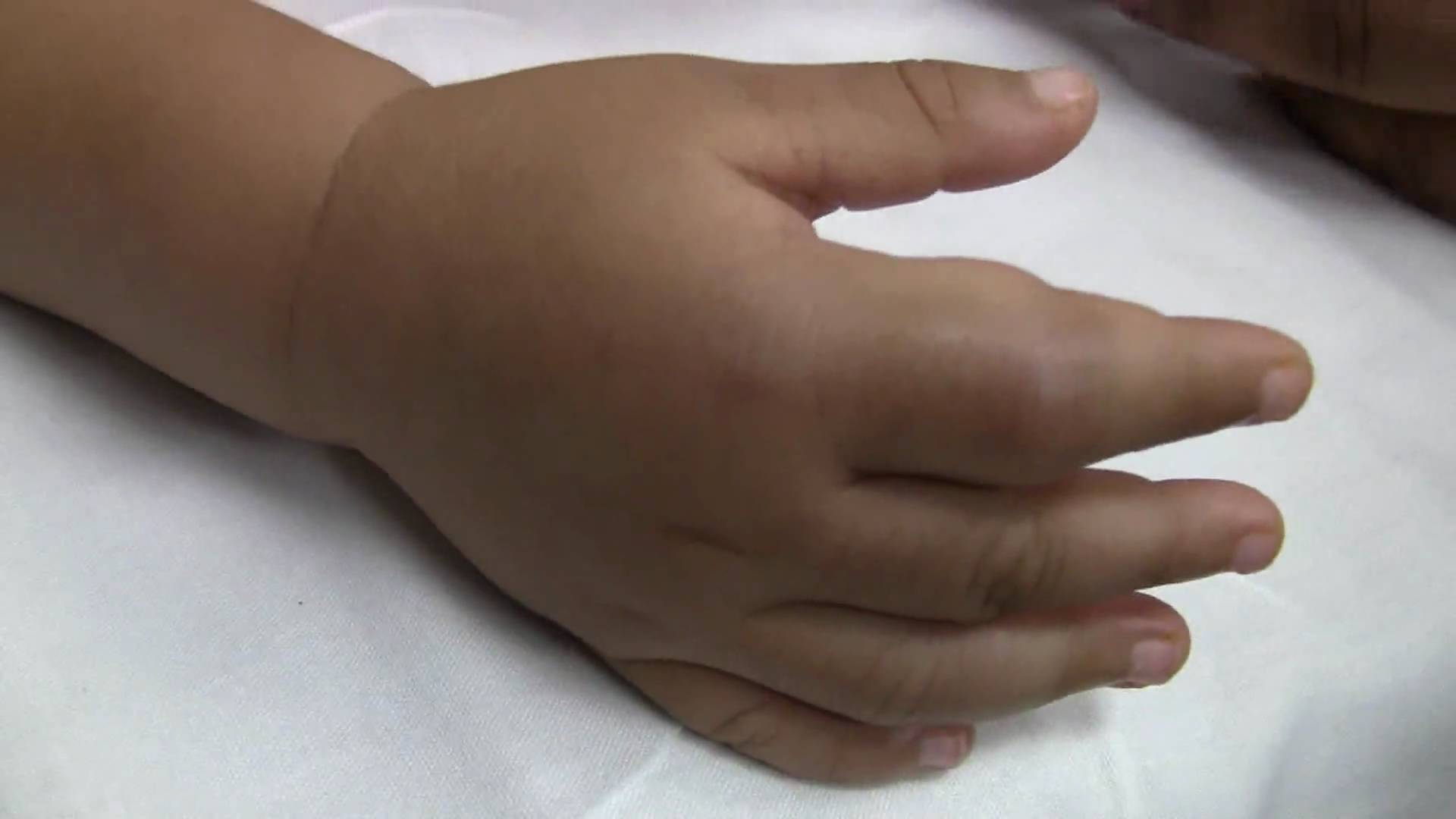 Swelling in the hands of a patient with sickle cell disease (source)