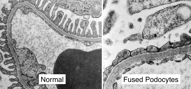 Electron microscopy showing fused podocytes. Normal provided as a reference (source)