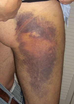 A possible clinical presentation of a subcutaneous hematoma (source)