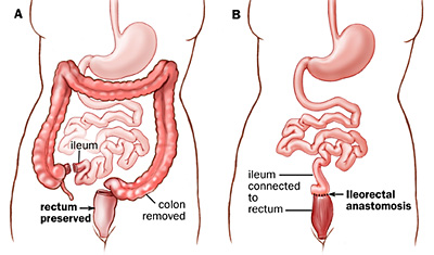 Colectomy technique often used to cure ulcerative colitis (source)