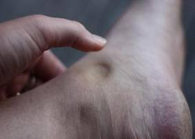 Pitting edema in a patient with diabetic nephropathy (source).