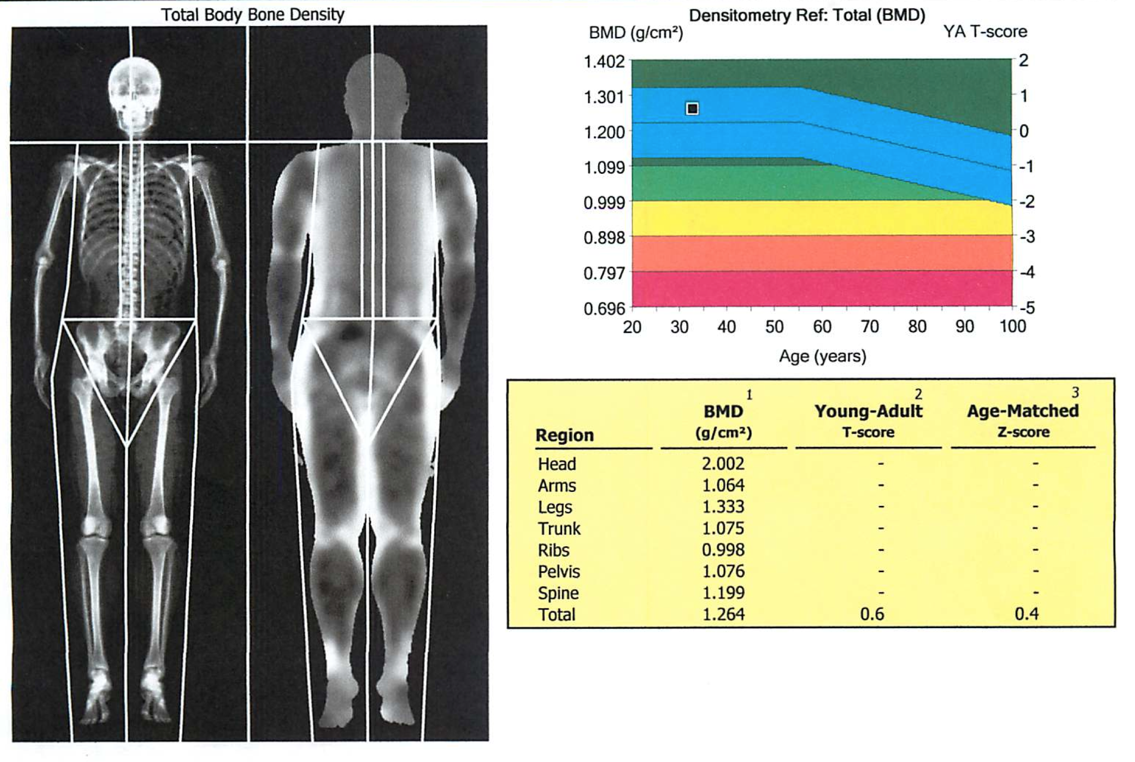 Example of a DEXA scan (source)