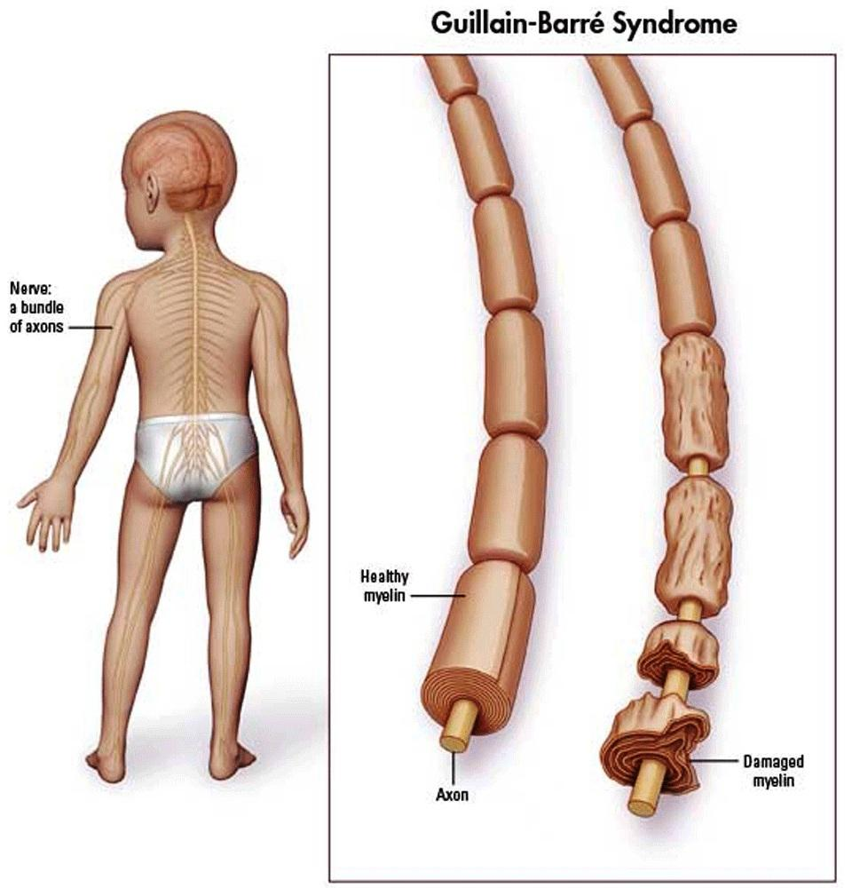 The underlying cause of GBS is demyelinating of peripheral nerves (source)