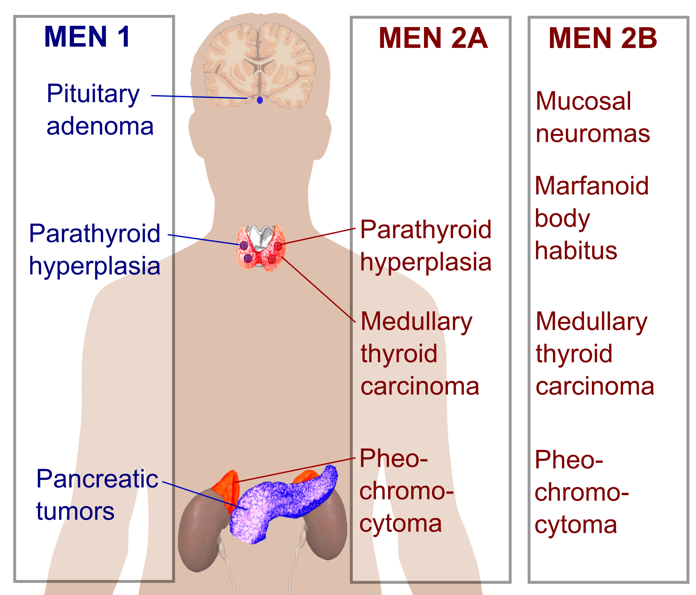 Overview of different MEN conditions (source)