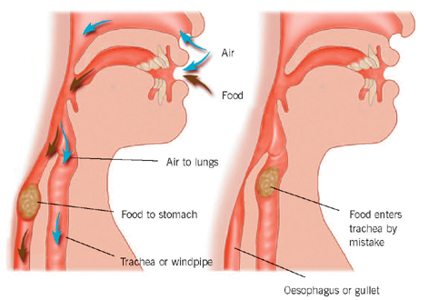 One type of aspiration pneumonia can be caused by aspiration of food into the lungs (source)