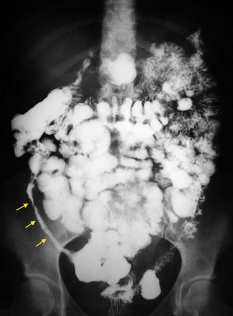 """Severe structuring of the bowel wall can lead to this characteristic """"string sign"""" (on barium swallow x-ray) in patients with Crohn disease (source)"""