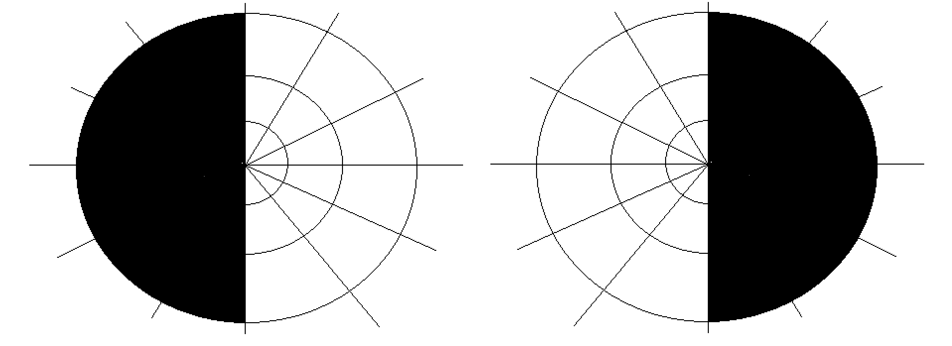 Loss of left visual field in the left eye, and right visual field in the right eye (black regions) mark the classic presentation of bitemporal hemianopsia (source)