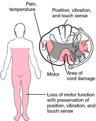 Schematic of anterior cord syndrome showing the casual lesion and patter of neurological loss anatomically (source)