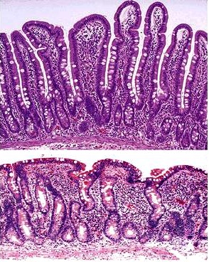 Biopsy of normal small intestine (top) compared to a biopsy from a patient with celiac disease (bottom). Blunting of villi can be clearly appreciated (source)