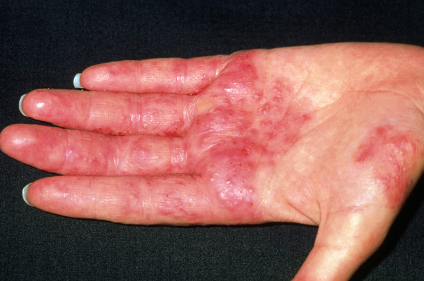 Contact dermatitis on the hand of a patient (source)
