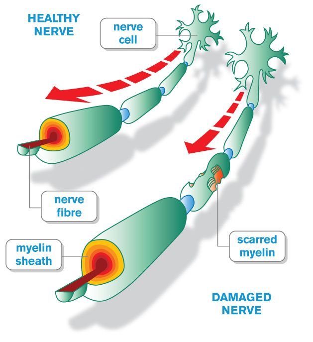 This autoimmune reaction ultimately results in the damage of the myelin sheath of neural axons within the CNS (source)