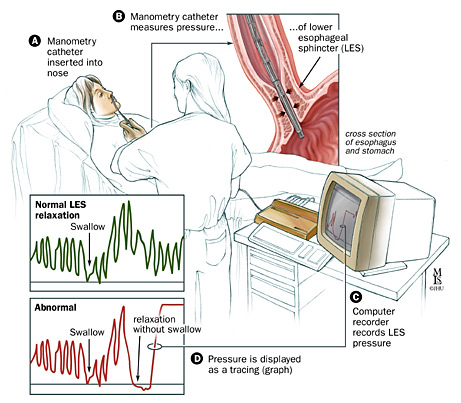 Esophageal manometry is a useful diagnostic tool for achalasia (source)