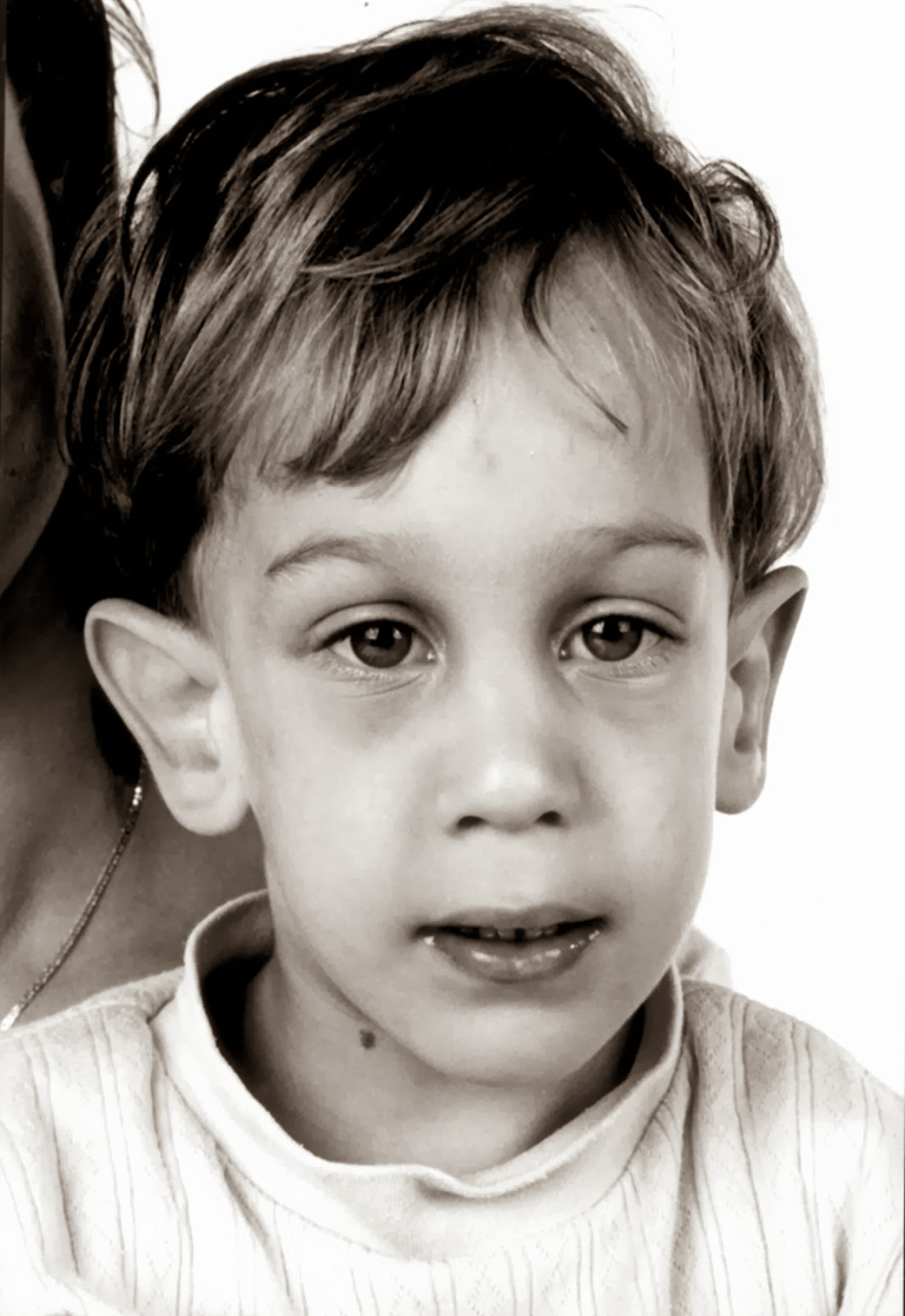 Child with fragile X syndrome (source)