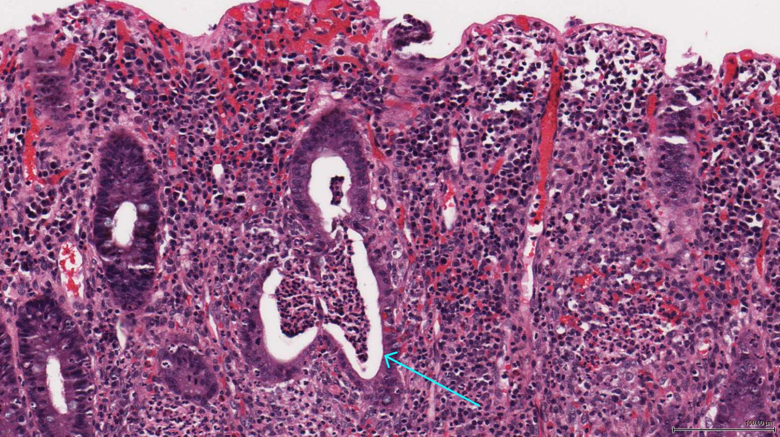 Histological appearance of ulcerative colitis. Blue arrow points to a crypt abscess (source)